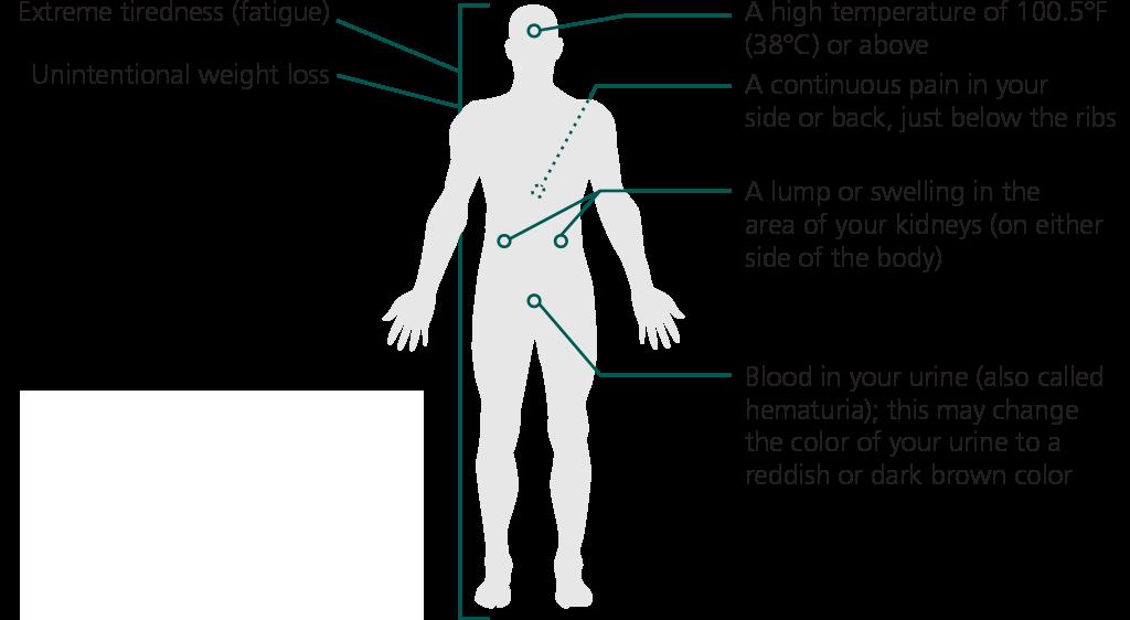 Signs Symptoms Of Metastatic Renal Cell Carcinoma Votrient Pazopanib
